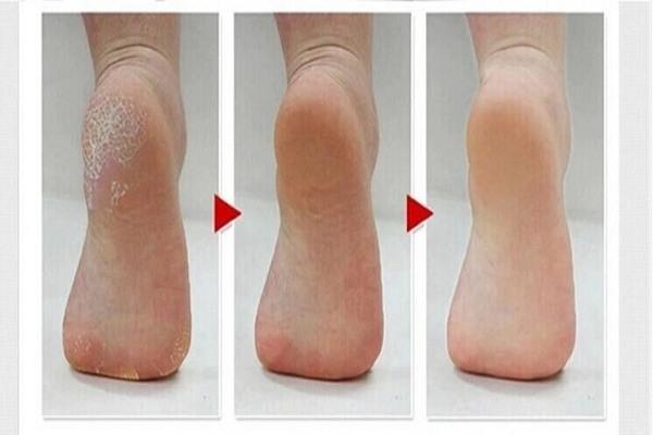 پوست پا