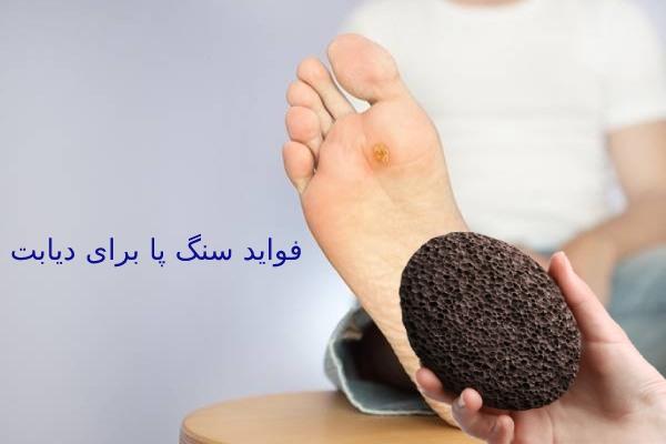 تاثیر سنگ پا در درمان دیابت
